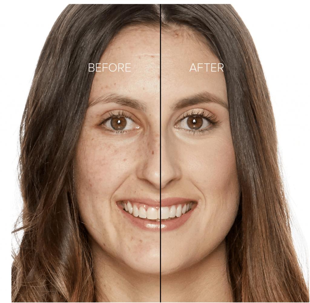 fond de teint peau acnéique too faced